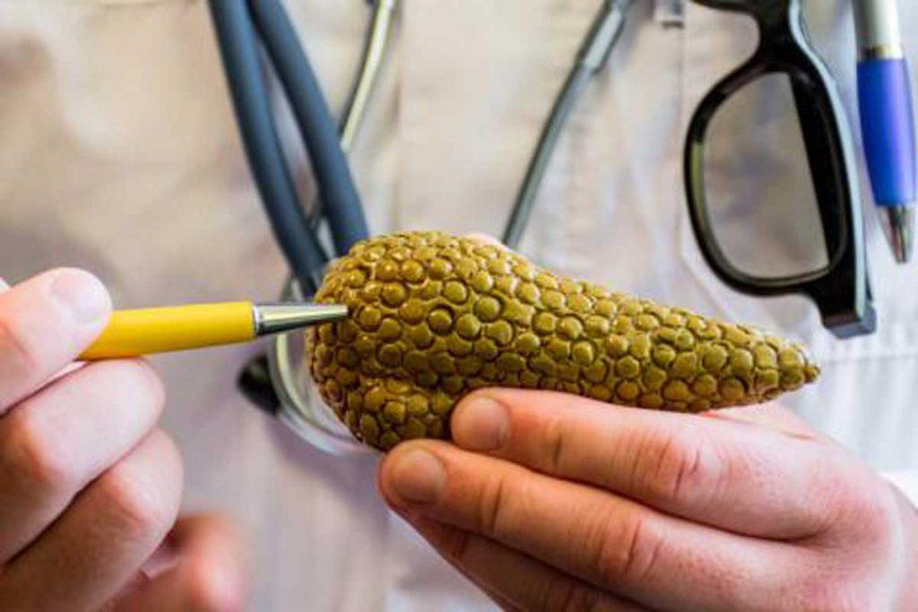 porque hay piedras en el pancreas